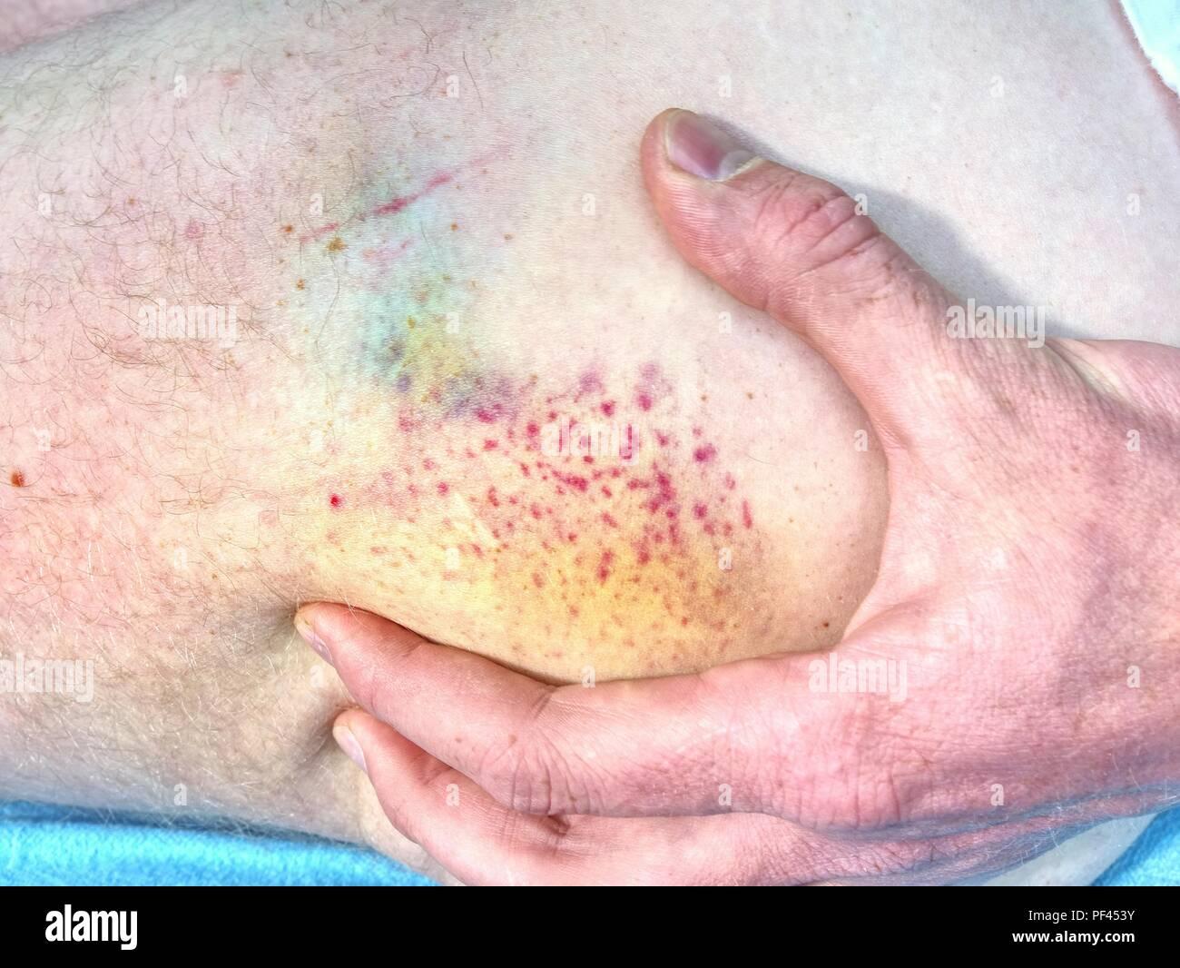 Blotchy Skin Stock Photos & Blotchy Skin Stock Images - Alamy