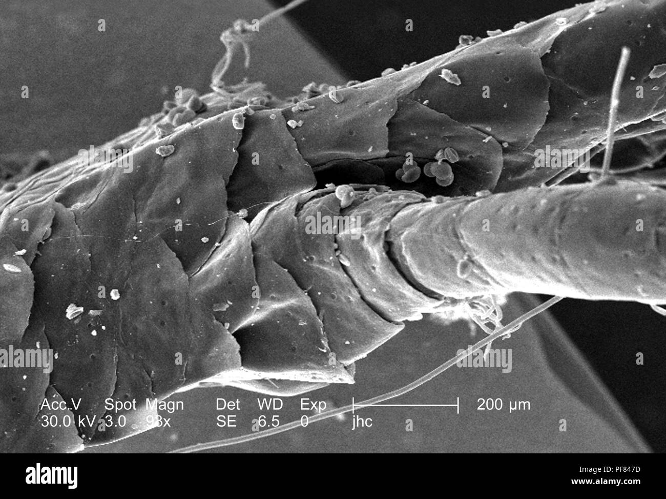 Morphologic features of a deceased lizard's foot found in Decatur, Georgia, revealed in the 98x magnified scanning electron microscopic (SEM) image, 2006. Image courtesy Centers for Disease Control (CDC) / William L. Nicholson, Ph.D. Cal Welbourn, Ph.D. Gary R. Mullen. () Stock Photo