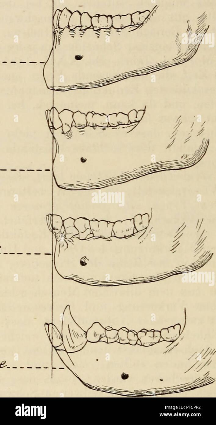 . Der Bau des Menschen als Zeugnis für seine Vergangenheit. Human beings; Anatomy, Comparative. 178 Tractus intestinalis. Franzose. Neß er. wie z. B. der Eskimos, Isländer und Lappen, eine gute Parallele. Für alle diese sind ja gute Zähne eine unumgängiiclie Lebensbedingung, und wie die von Mumäiery u. a. gemachten Erhebungen zeigen, leiden die betreffenden Tiere und Völkerschaften nie, bezw. nur sehr selten an Zahn- krankheiten. So wurden kariöse Prozesse nachgewiesen: unter Eskimos etwa bei 2,5 vom Hundert, unter Indianern bei 3—lO^o, unter Ma- laien 3—2070, unter Chinesen bei 40^0 und unter - Stock Image
