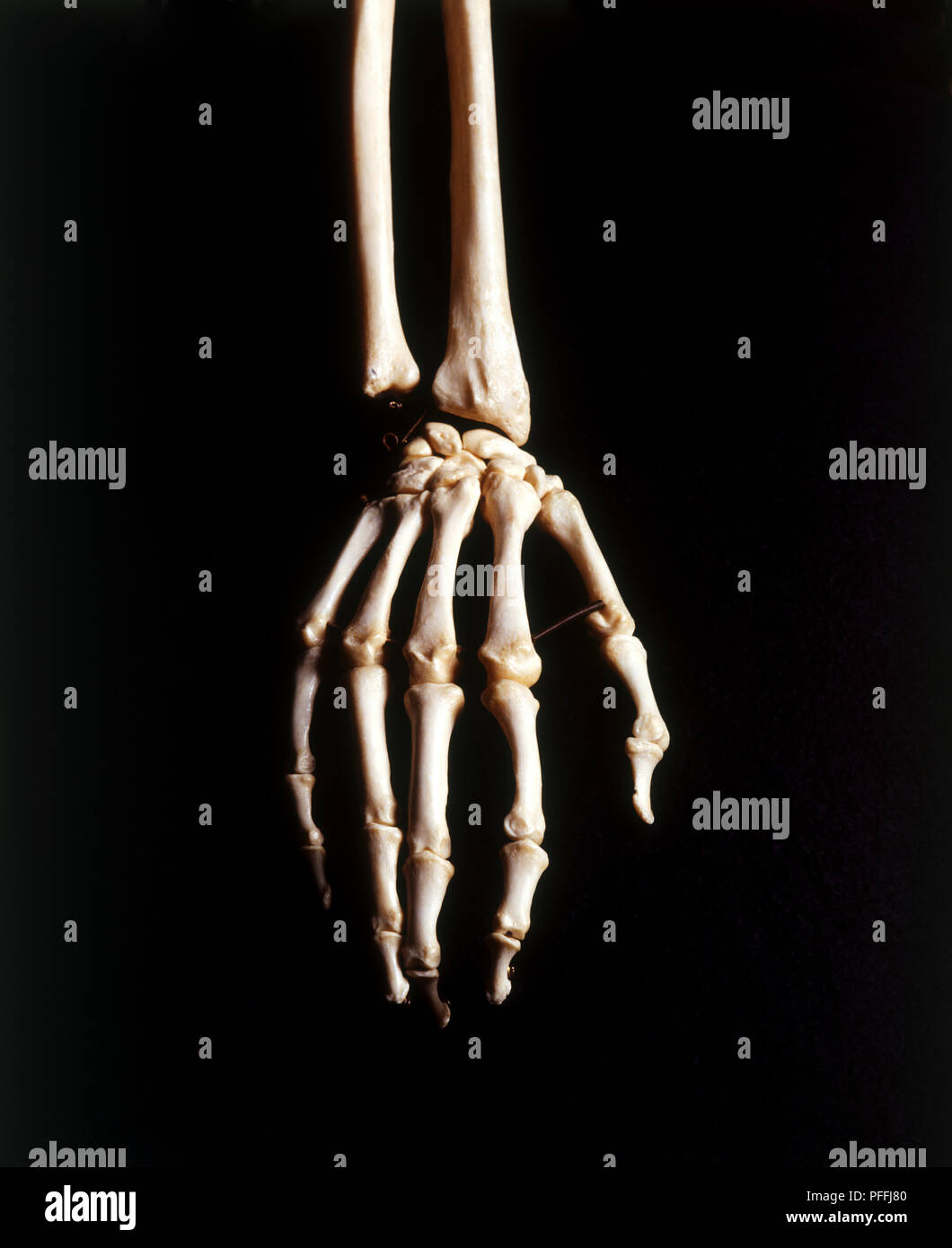 Hand Wrist Bones Studio Shot Stock Photos Hand Wrist Bones Studio