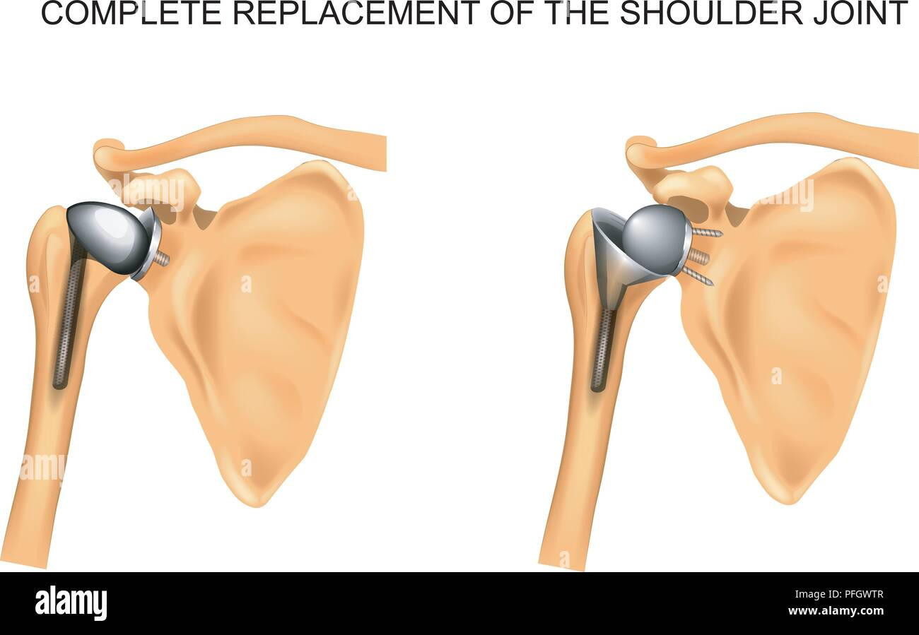 vector illustration of the types of prosthesis of shoulder - Stock Image