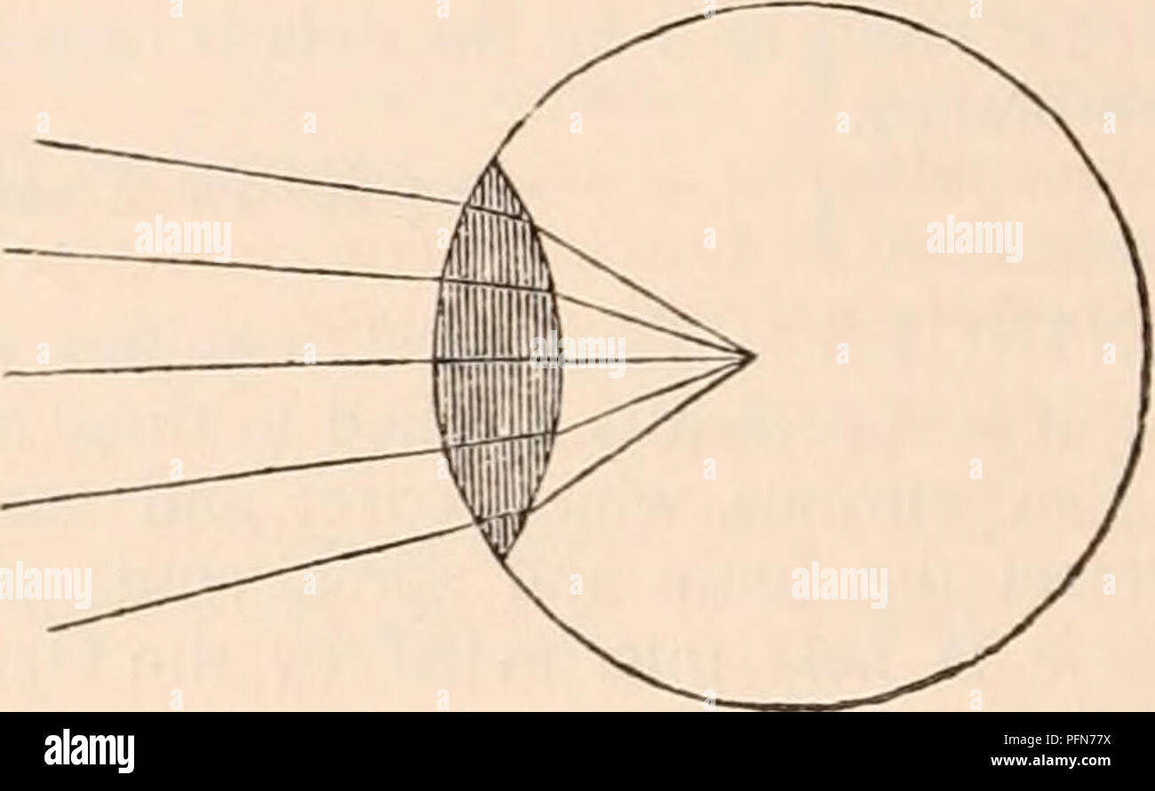 the cyclopdia of anatomy and physiology anatomy physiology zoology parallel rays falling on a plano convex lens brottght to a focus at the distance of its diameter arid vice versa if a double convex lens will bring parallel rays to a focus in the centre of its sphere of curva ture it will on the other hand cause rays to assume a parallel direction which are diverging from its focus so that if a luminous body were placed in that point all its cone of rays which fell upon the surface of the lens would pass out in a cylindrical form again if rays al ready converging fall upon PFN77X the cyclopædia of anatomy and physiology anatomy; physiology