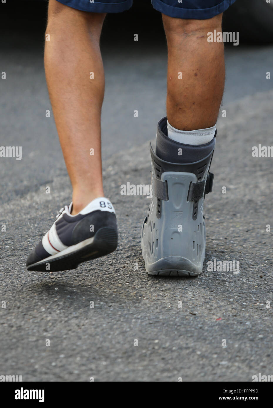 Details of an injured leg in an orthosis of a patient going to the hospital - Stock Image