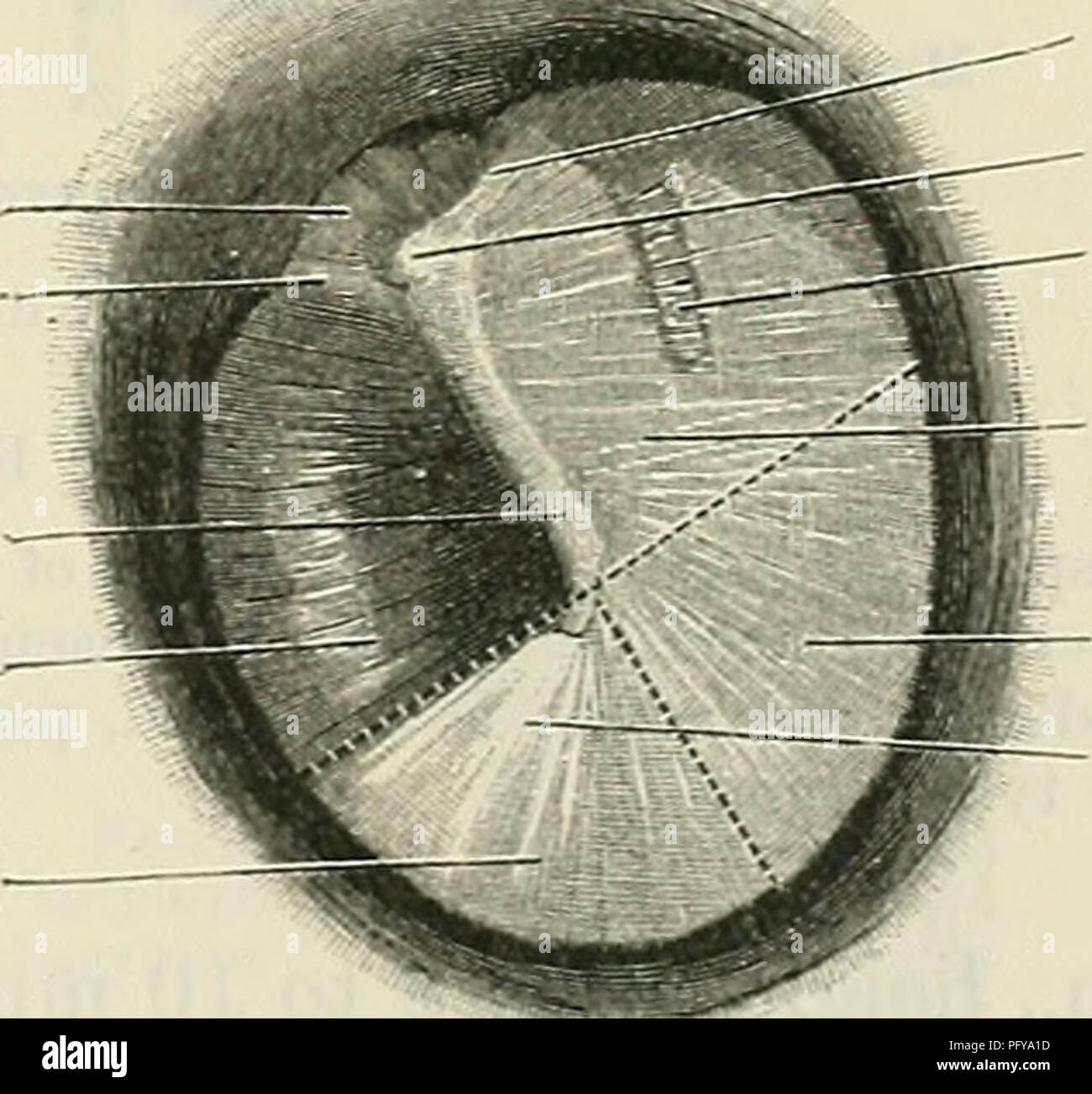 . Cunningham's Text-book of anatomy. Anatomy. TYMPANIC CAVITY OR MIDDLE EAE. 835 anterior and posterior malleolar plicae. The small triangular portion of the membrane (Fig. 710) situated above these folds is thin and lax, and constitutes the pars flaccida (O.T. membrane of Shrapnell); the main portion of the membrane is, on the other hand, tightly stretched and termed the pars tensa. A small orifice, sometimes seen in the pars flaccida, is probably either a pathological condition or has been produced artificially during manipulation. The manubrium mallei is firmly fixed to the medial surface o - Stock Image