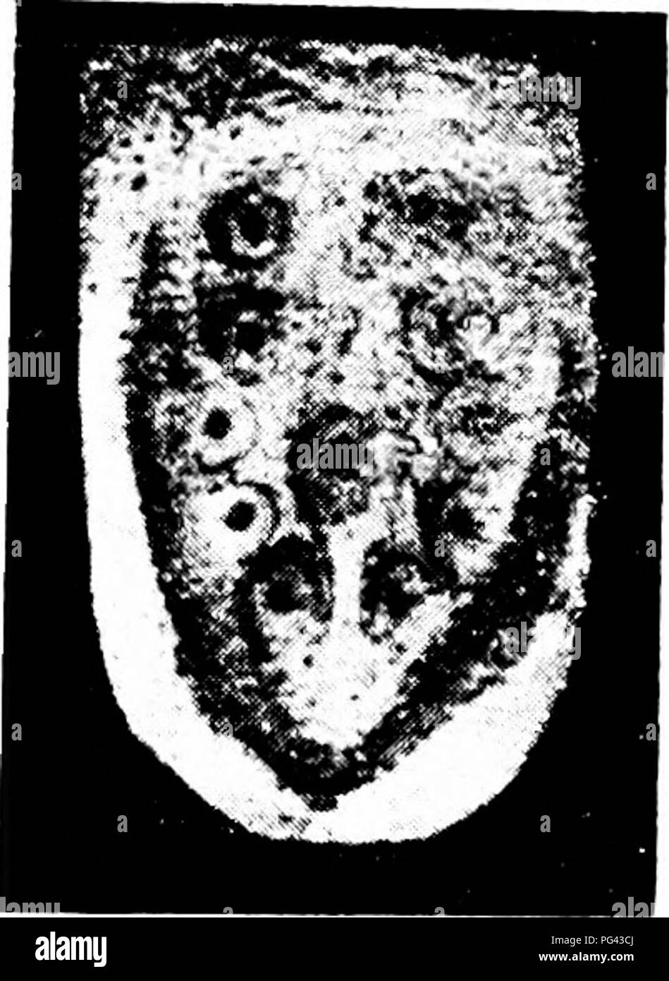 . The mammary apparatus of the mammalia : in the light of ontogenesis and phylogenesis . Mammals; Mammary glands. DEVELOPMENT IN DIDELPHY8 73 caudal pairs of nipple primordia are clearly seen. Round the central primordium and the fourth pair, however, they are only beginning to develop. These primordia obviously belong to the inner series of the four-rowed arrangement that we have already recognized. I would. Fig. 27.—Abdominal Wall of Young Didelphys, (Bresslau.) Micro-photograph, 12 diameters. especially emphasize that these ring-shaped ingrowths are to be regarded as individual formations,  - Stock Image