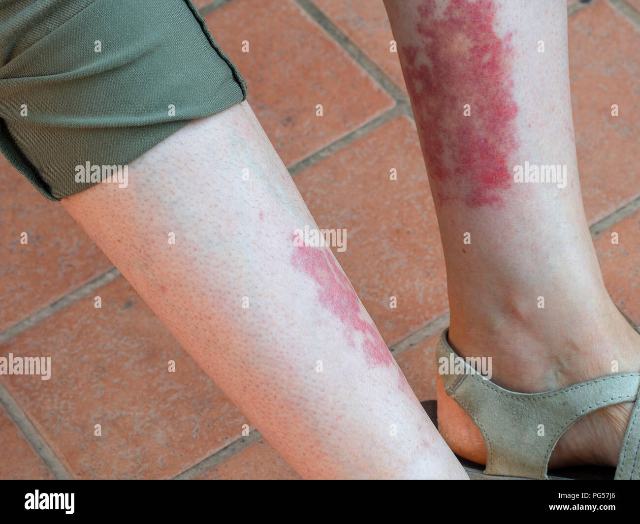 Leukocytoclastic vasculitis, an inflammatory reaction in the blood vessels. Aka golfer's, hiker's or exercise-induced-vasculitis or Disney rash. - Stock Image