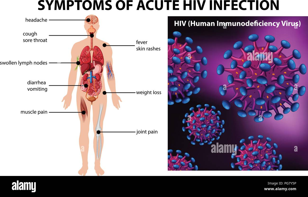 Symptoms of acute HIV infection illustration Stock Vector Art