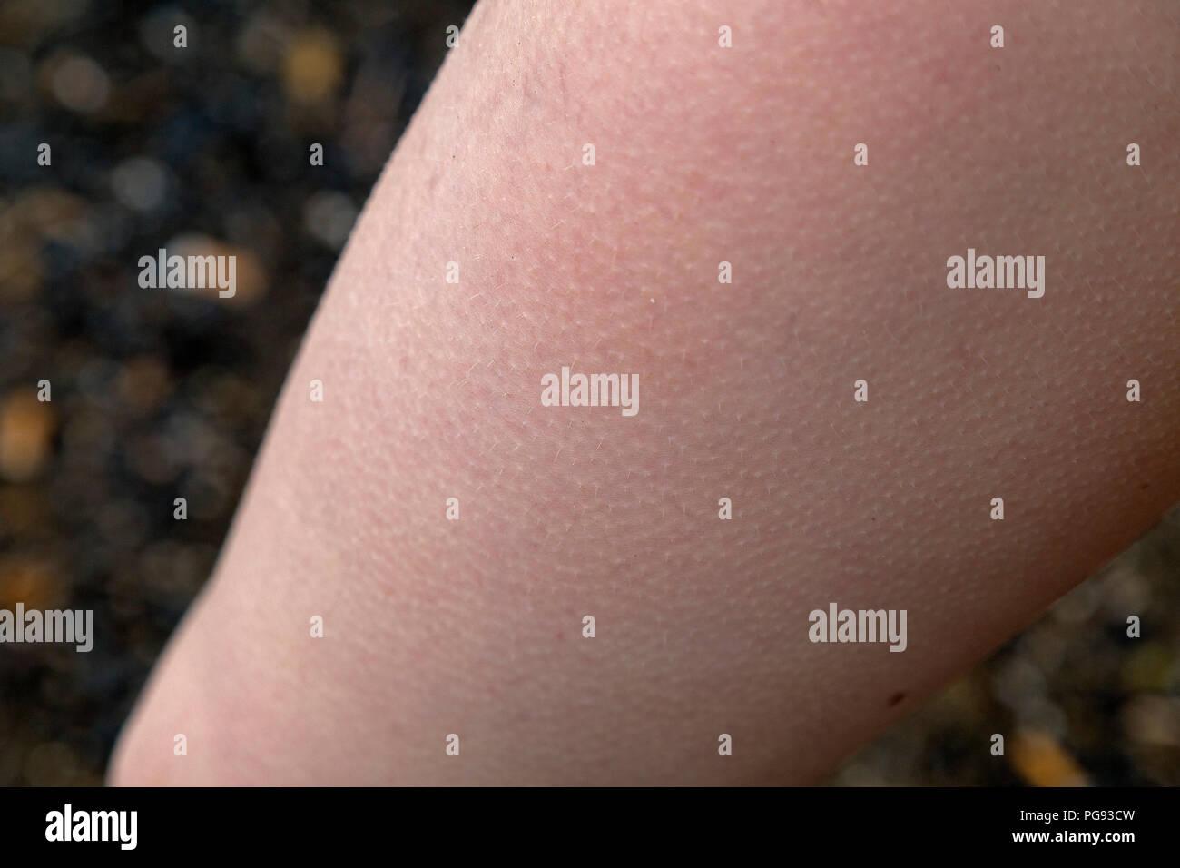 goose bumps (Cutis anserina) on a boy´s thigh, Alpsee, Immenstadt, Allgaeu, Bavaria, Germany - Stock Image