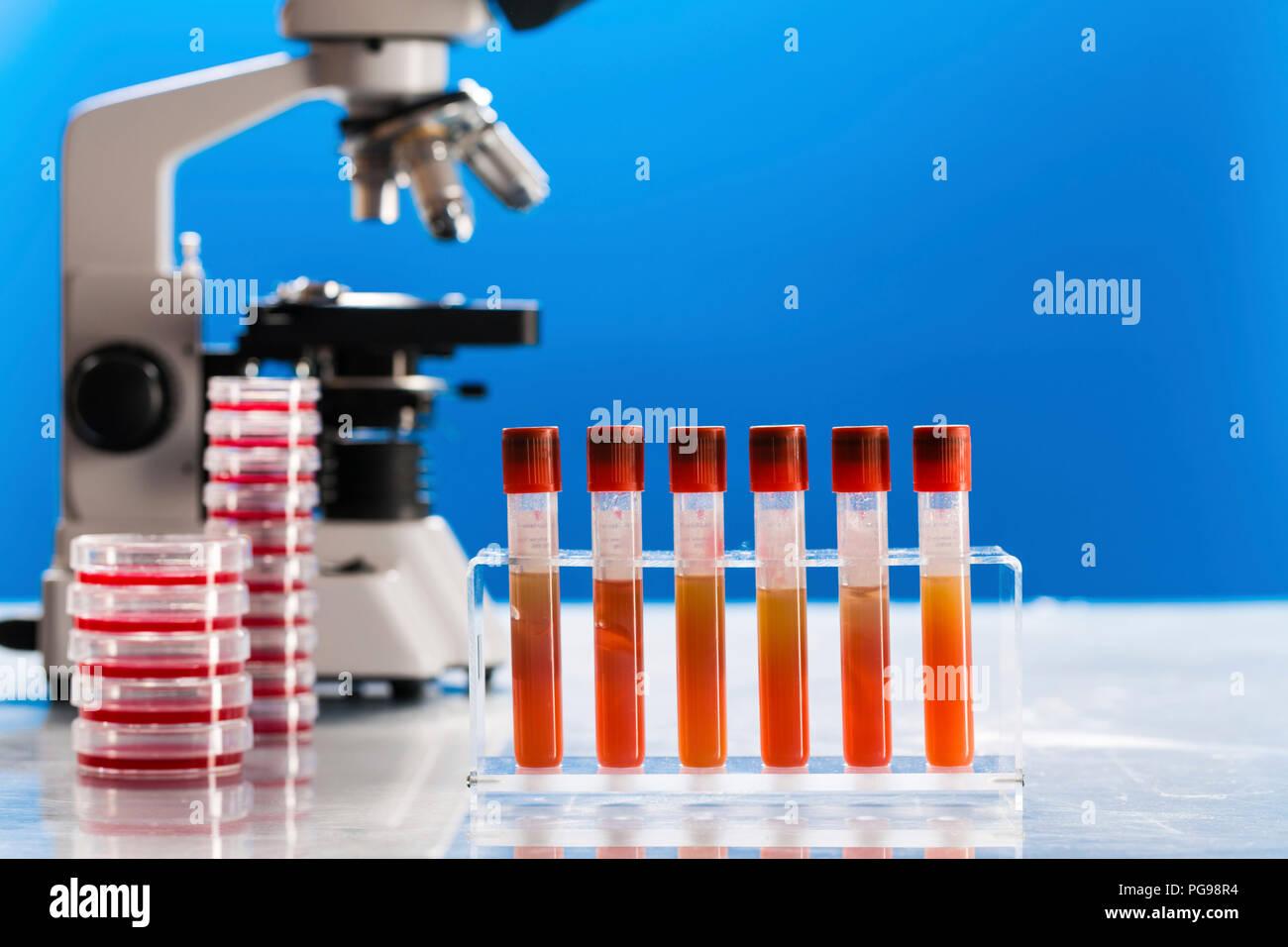 Pathology lab, conceptual image. - Stock Image