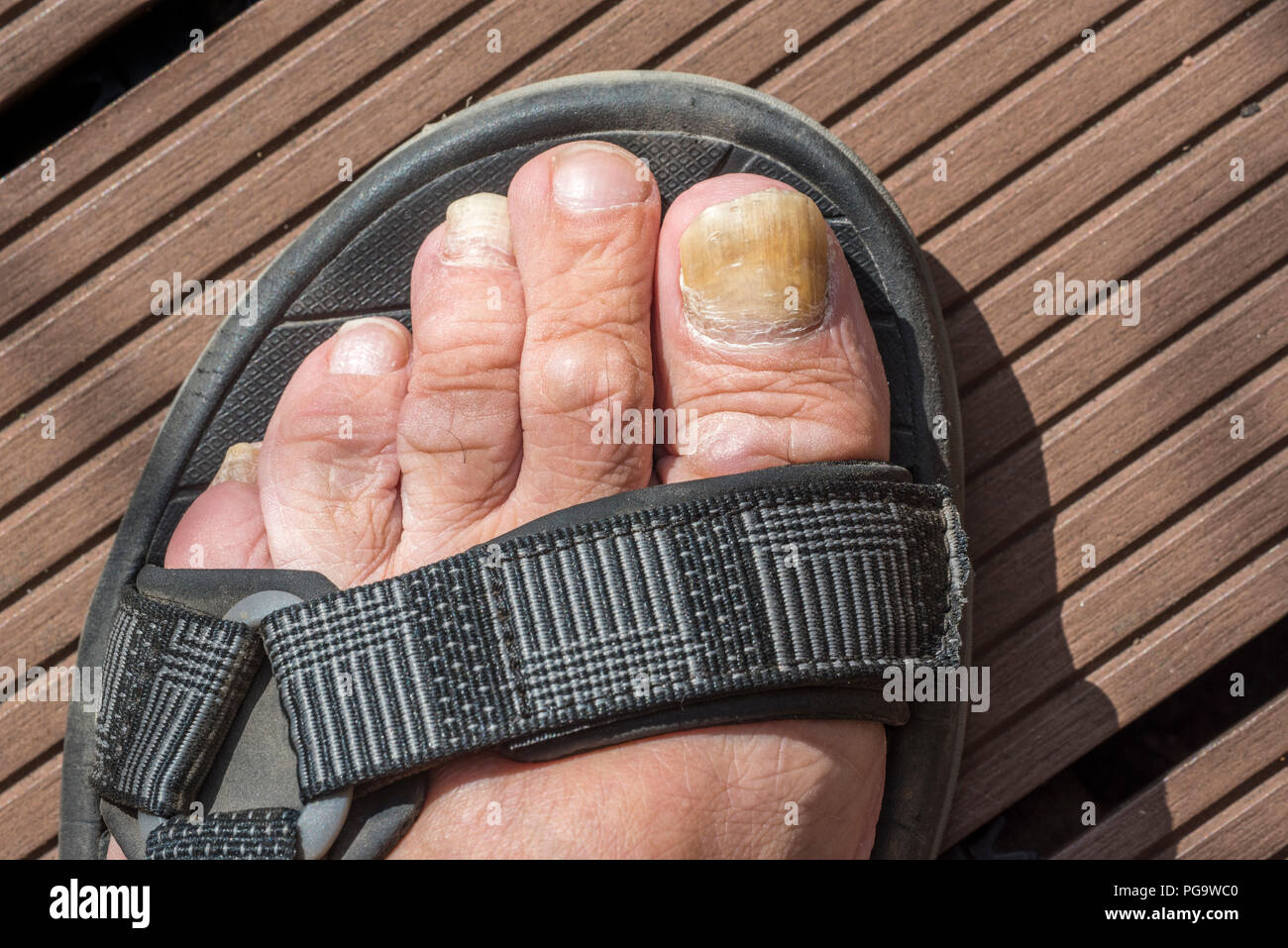 Foot in sandal showing Onychomycosis / tinea unguium, fungal infection of toenail / toe nail - Stock Image