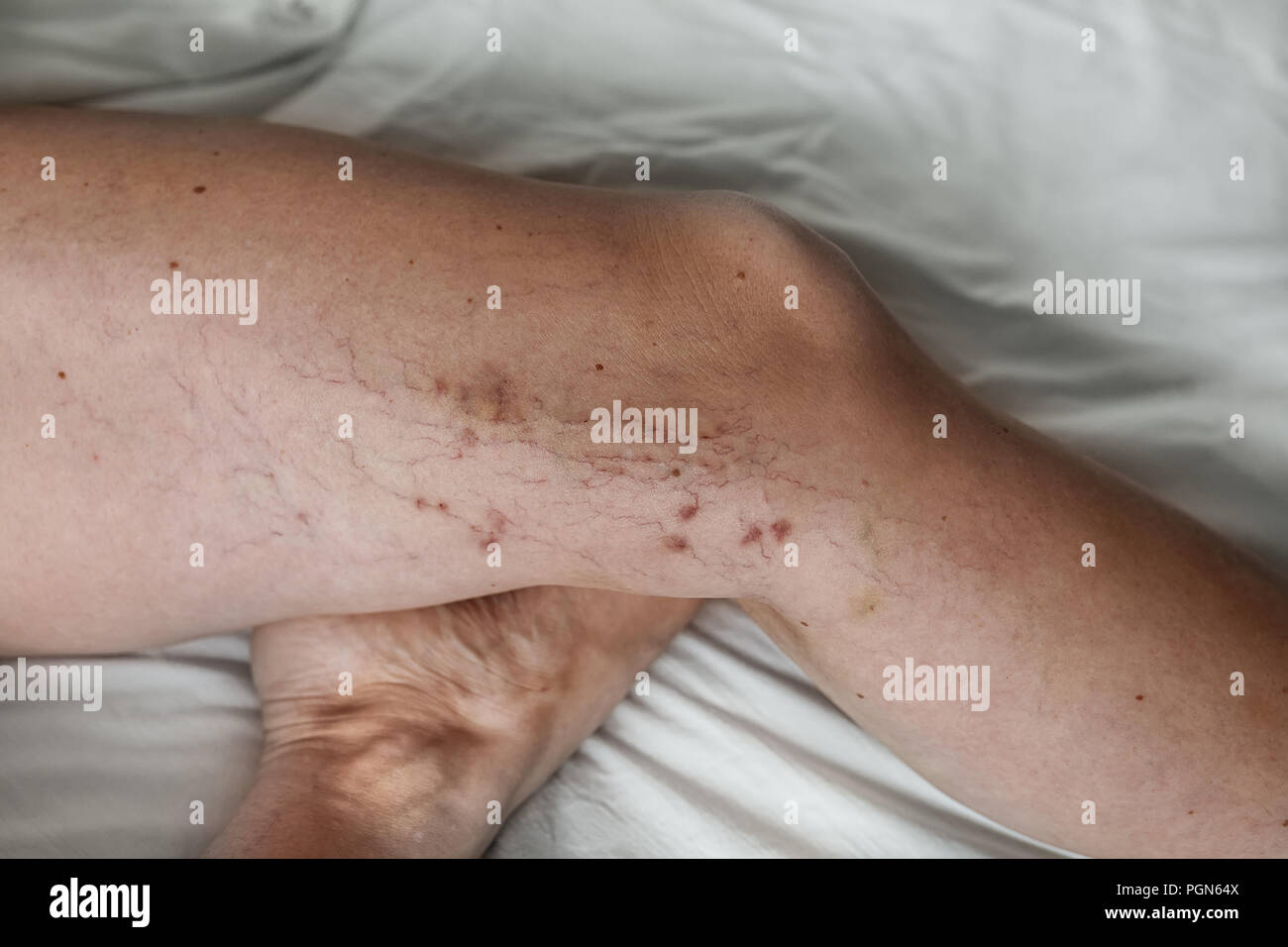 the disease varicose veins on a womans legs - Stock Image