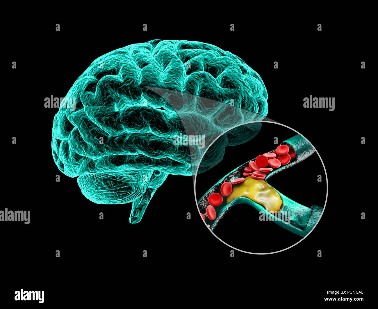 Human brain with cerebral sclerosis. Human brain anatomy 3d ...