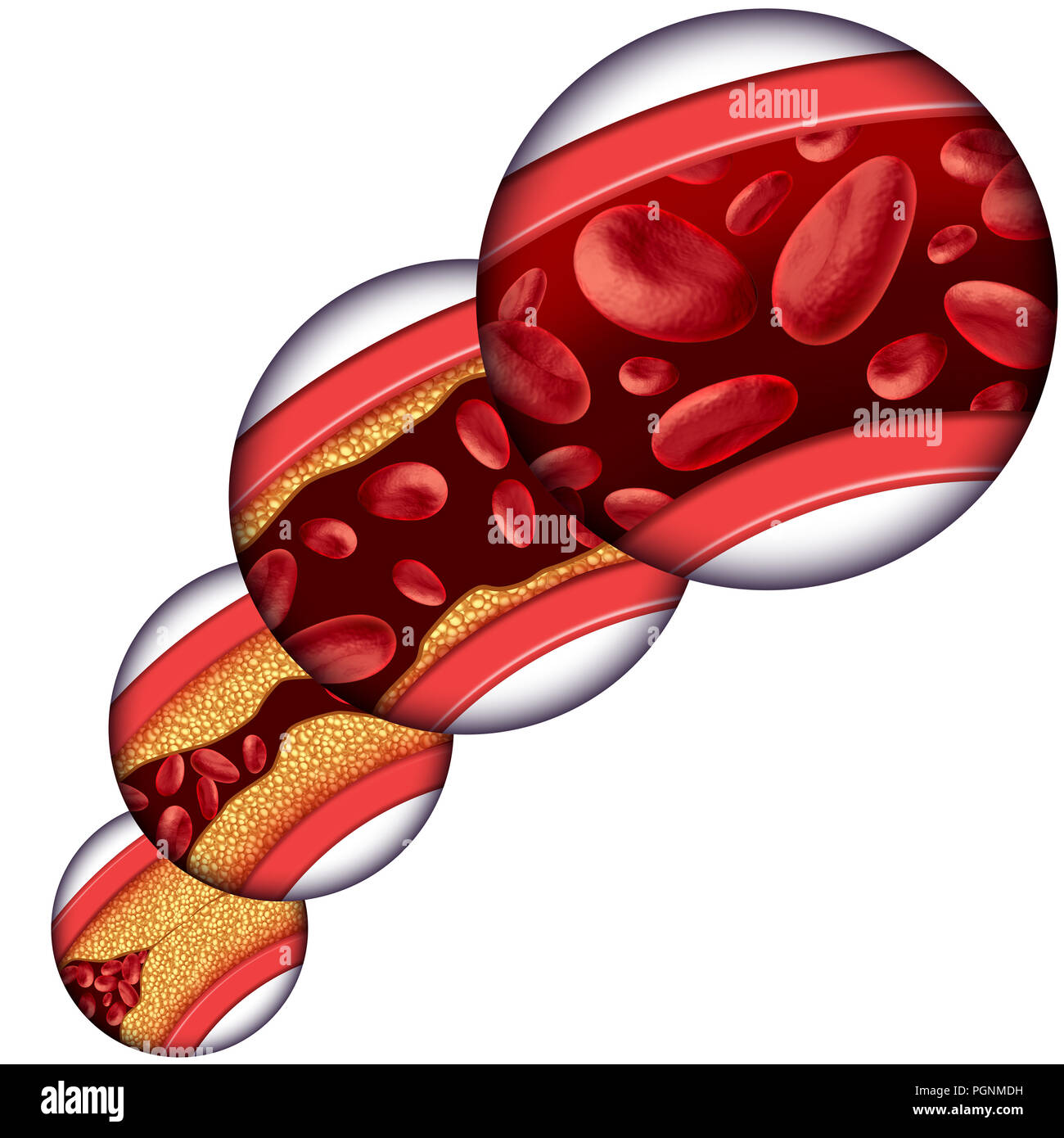 Coronary artery cholesterol therapy medical concept as a vein with gradual plaque removal from clogged arteries and atherosclerosis. - Stock Image