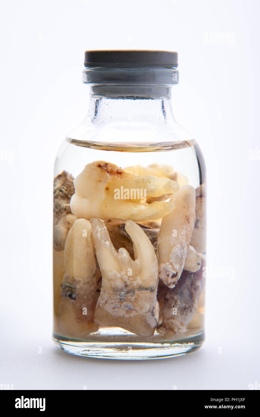 Concept - dentist's trophy. Set of removed teeth in a glass medical vial with ethyl alcohol. Macro Stock Photo