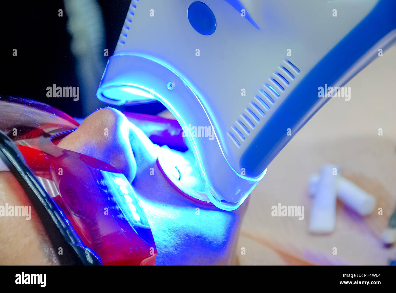 Adult female receiving teeth whitening procedure.portrait of a female patient at dentist in the clinic. Teeth whitening procedure with ultraviolet light UV lamp. LED lamp for Teeth whitening procedure in the dental office - Stock Image