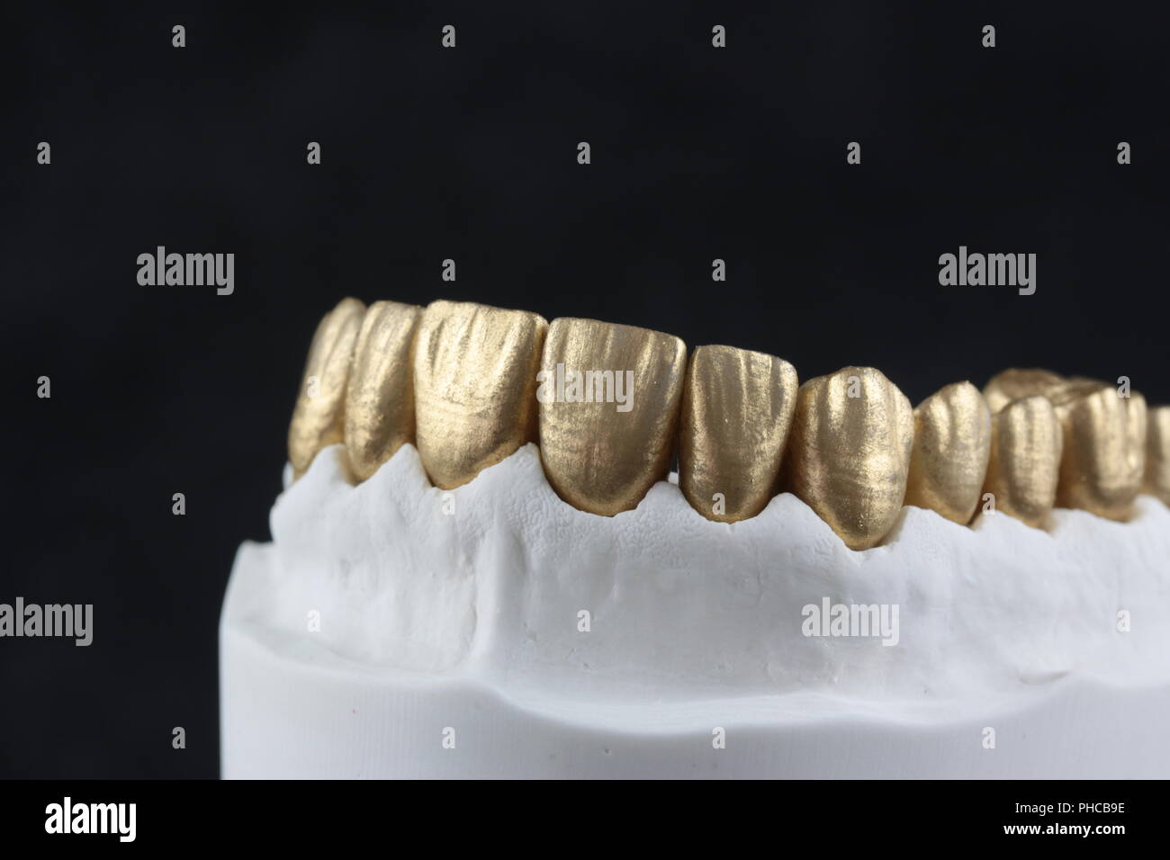 Dental Work - Stock Image