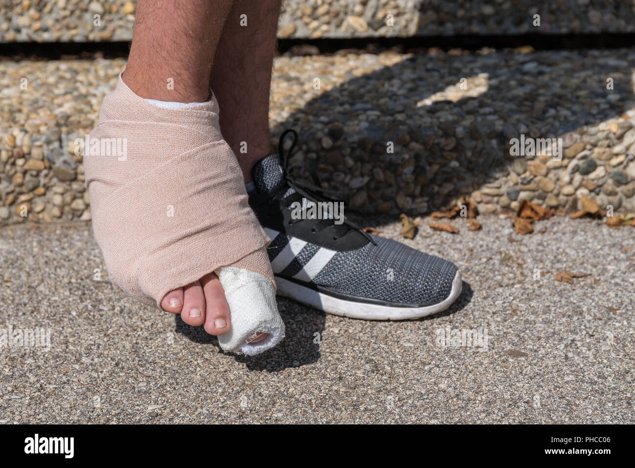 Bandaged right foot and toe injury - close-up - Stock Image