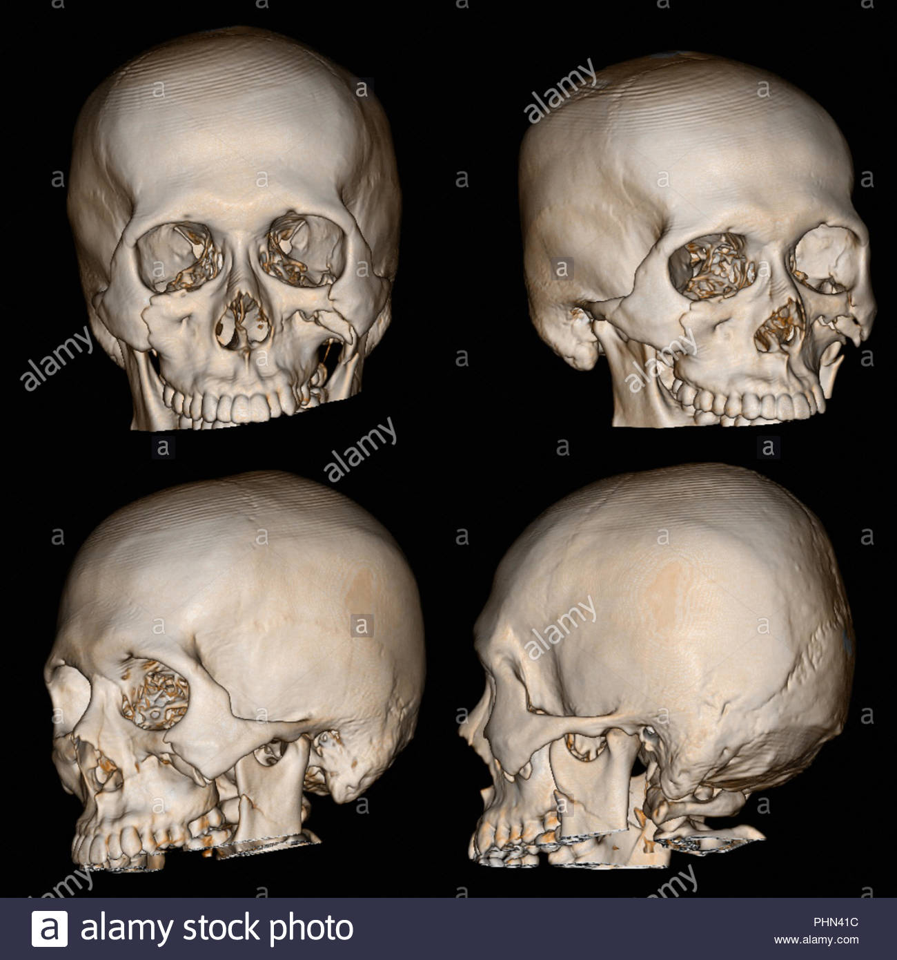 3-D rendering image of a patient skull with traumatic brain injury showing compression or depression, fracture of both orbital rim and left zygomatic  - Stock Image