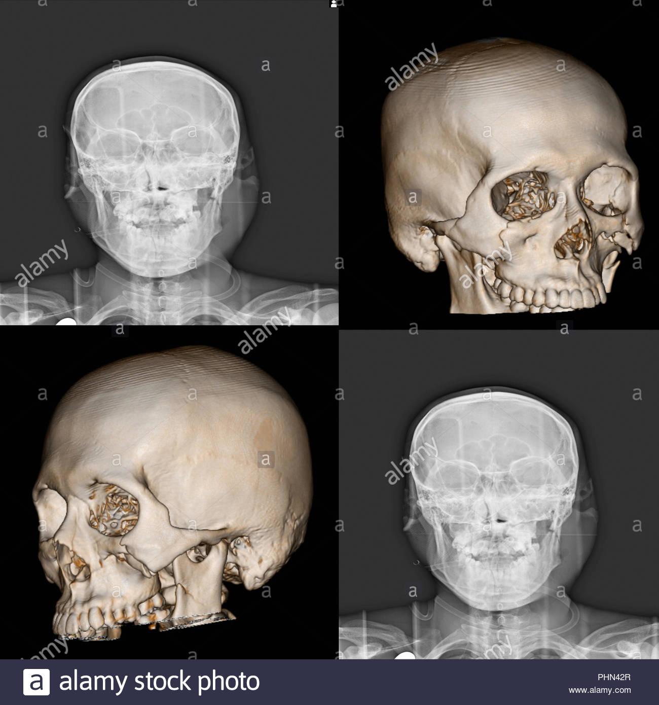 Bone facial fracture cum anal gif
