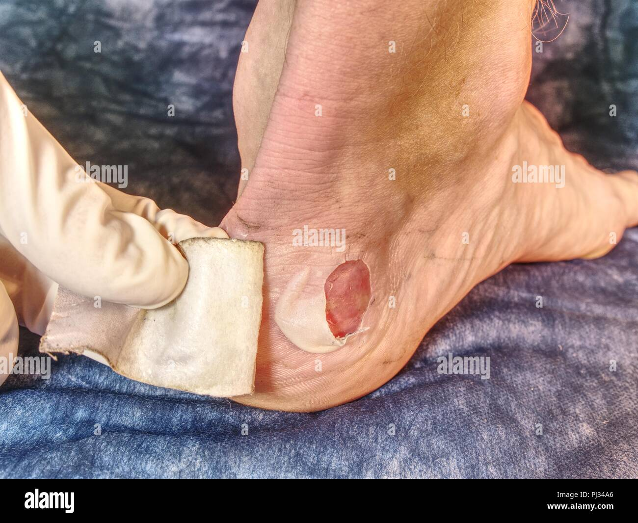 Detail of a fresh bloody blister on leg after sport accident.  Hot  and untouchable place on male skin. - Stock Image