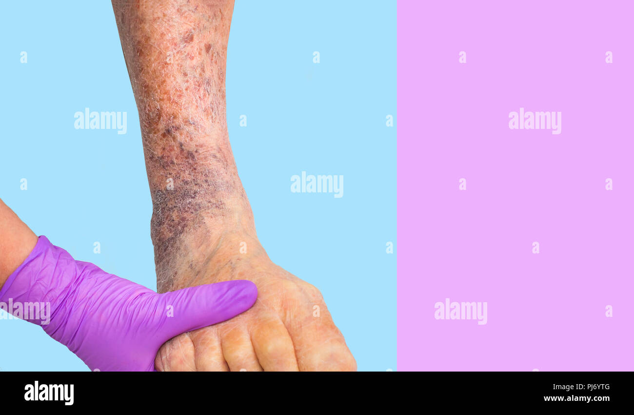 Close-up of skin with varicose veins - Stock Image