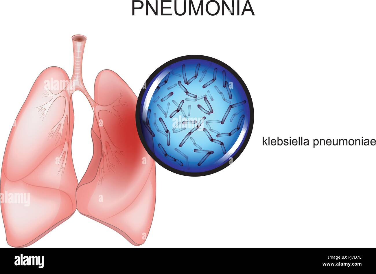 vector illustration of pneumonia. causative agent - Klebsiella - Stock Image