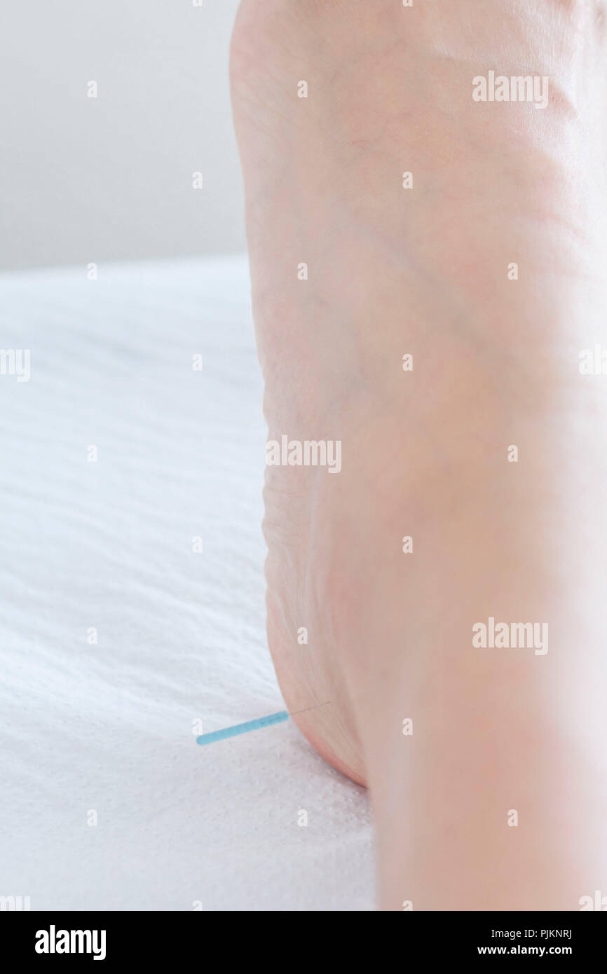 Acupuncture needle on the heel, - Stock Image