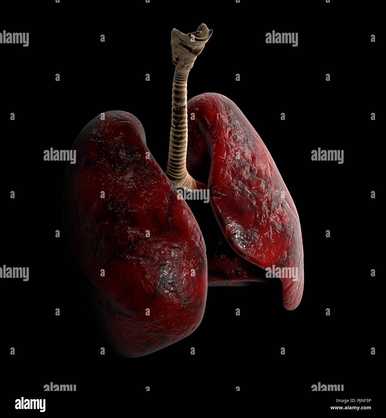 Human Lung anatomy, 3d Illustration on black background - Stock Image