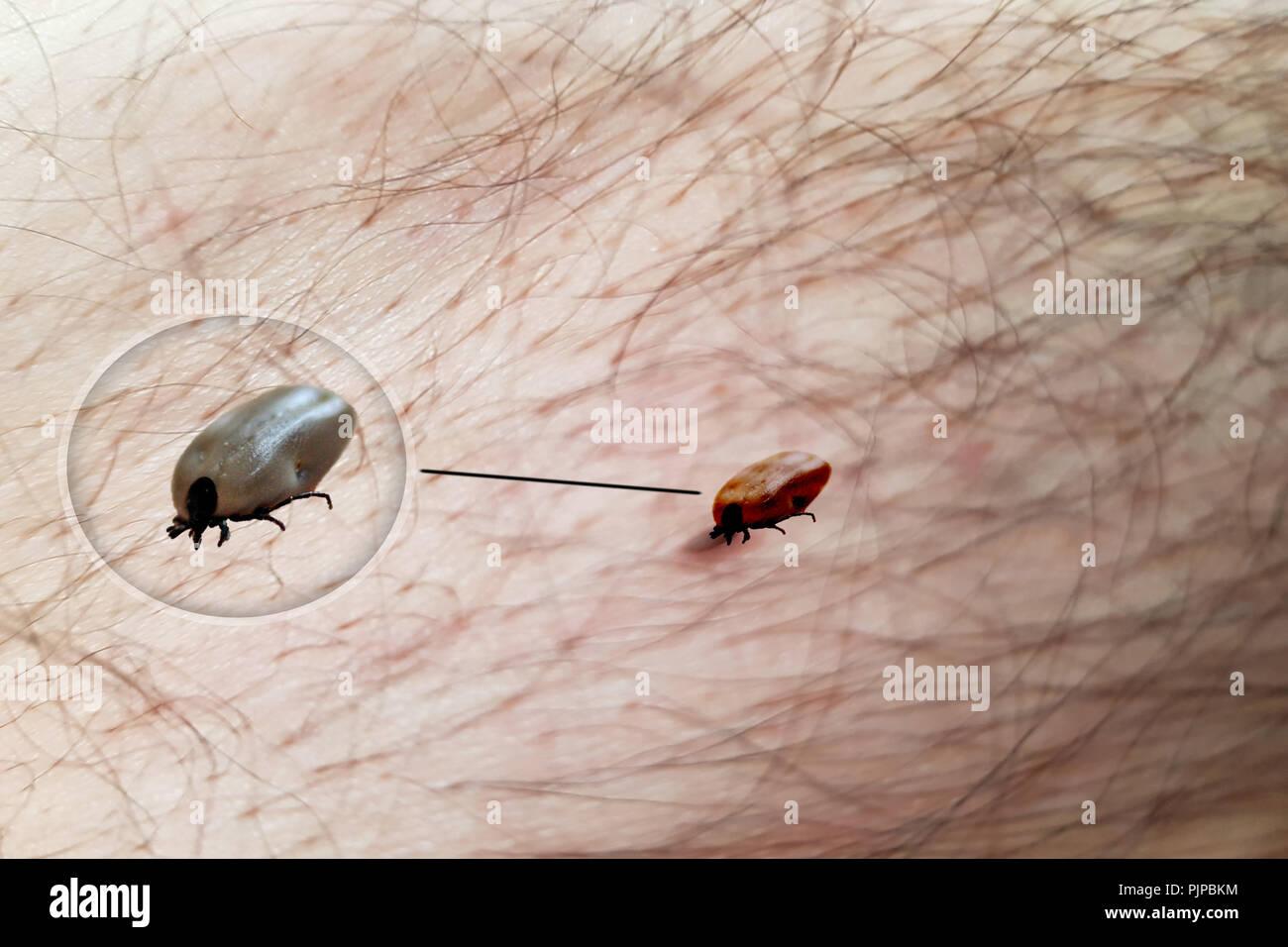 Tick crawls on the skin. Walking over the human body. The tick transmits encephalitis, Lyme disease, babesiosis and ehrlichiosis. - Stock Image