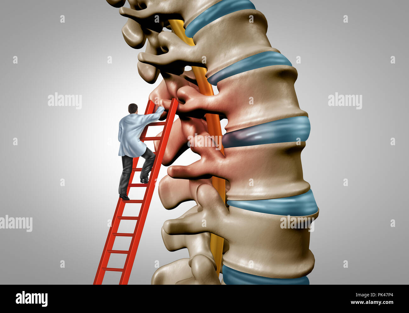 Spine therapy and spinal stenosis medical surgery concept as