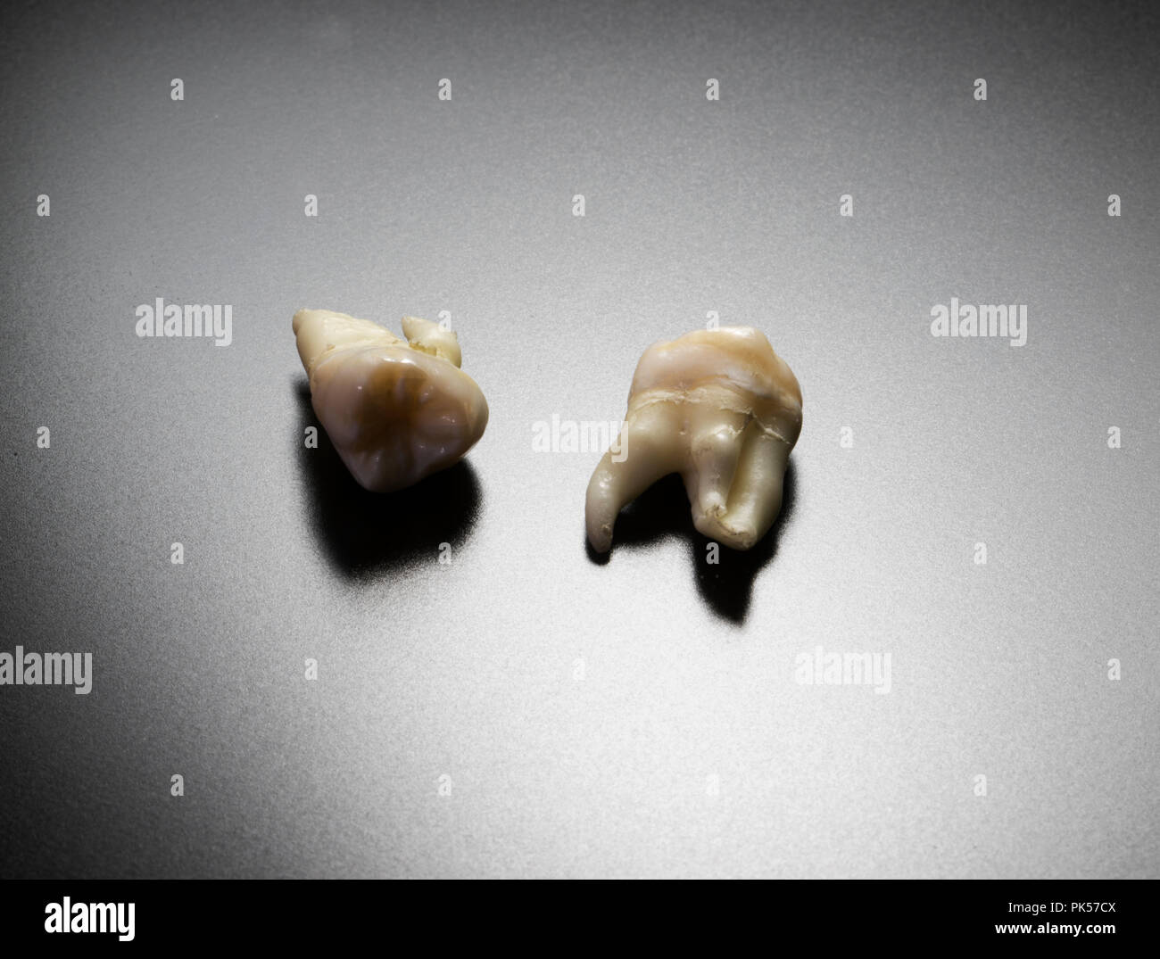 Human teeth. Removing wisdom teeth. Dental extraction of adult molars. Isolated teeth. - Stock Image
