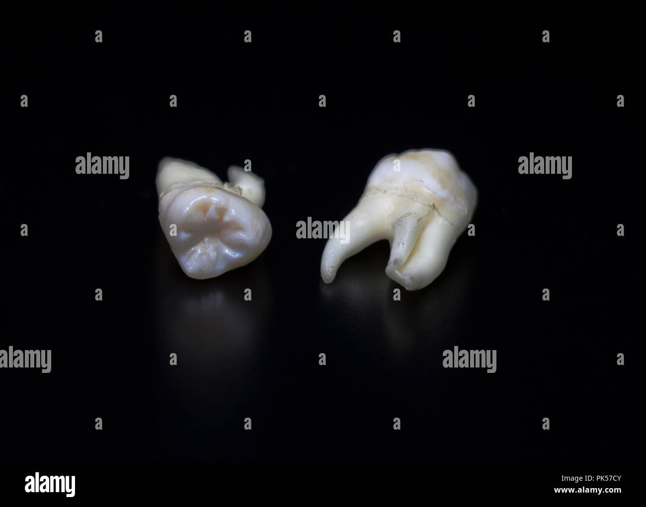 Adult teeth, extracted wisdom teeth reflecting on a black background. Human Anatomy bones and teeth. Tooth decay. Stock Photo