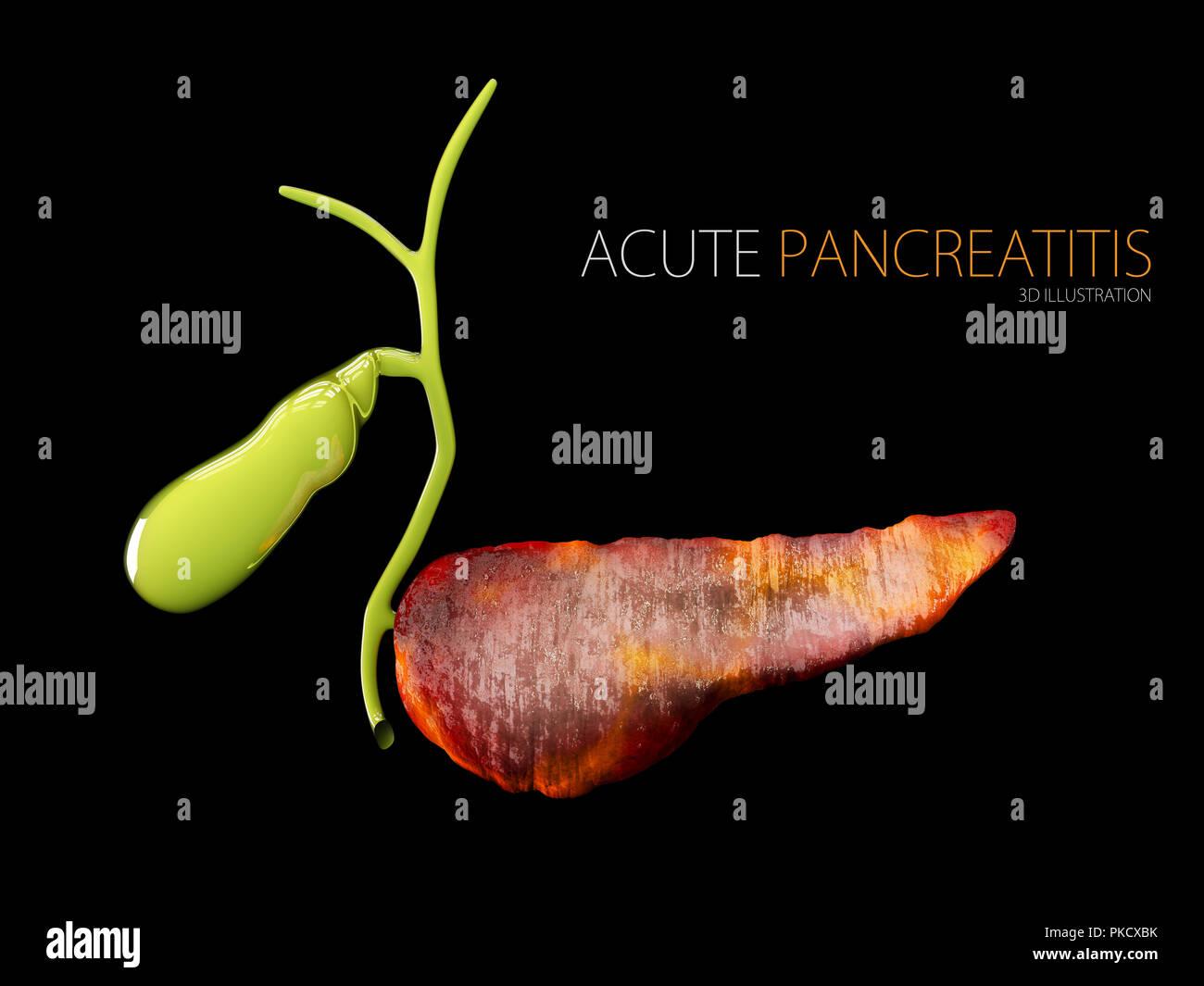 Acute pancreatitis 3d illustration, inflammation of pancreas on a black background - Stock Image