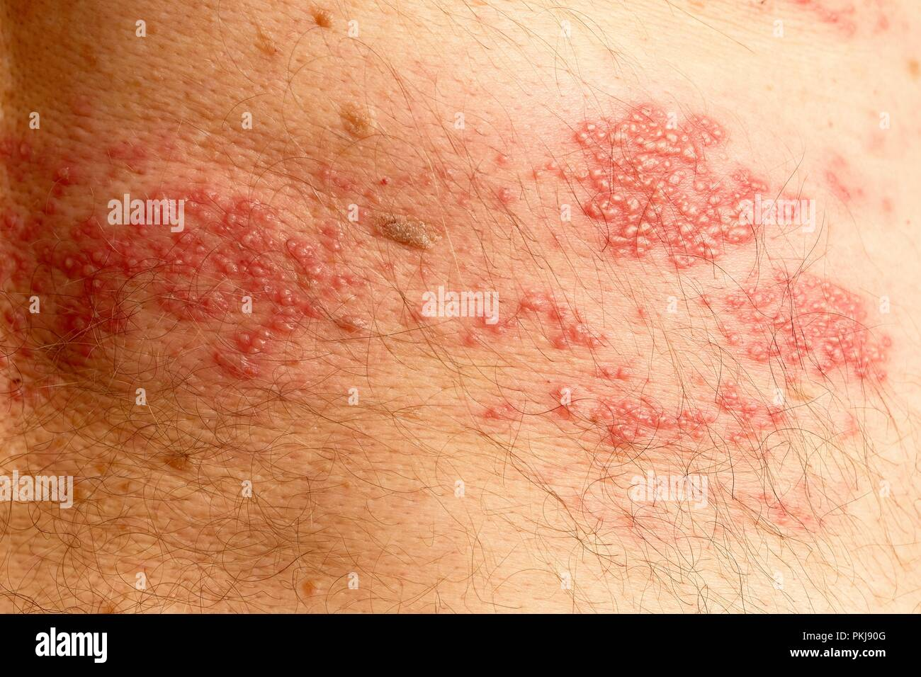 Over 50s male showing the classic rash associated with Shingles, starting at the spine and spreading across one side of the body only. - Stock Image