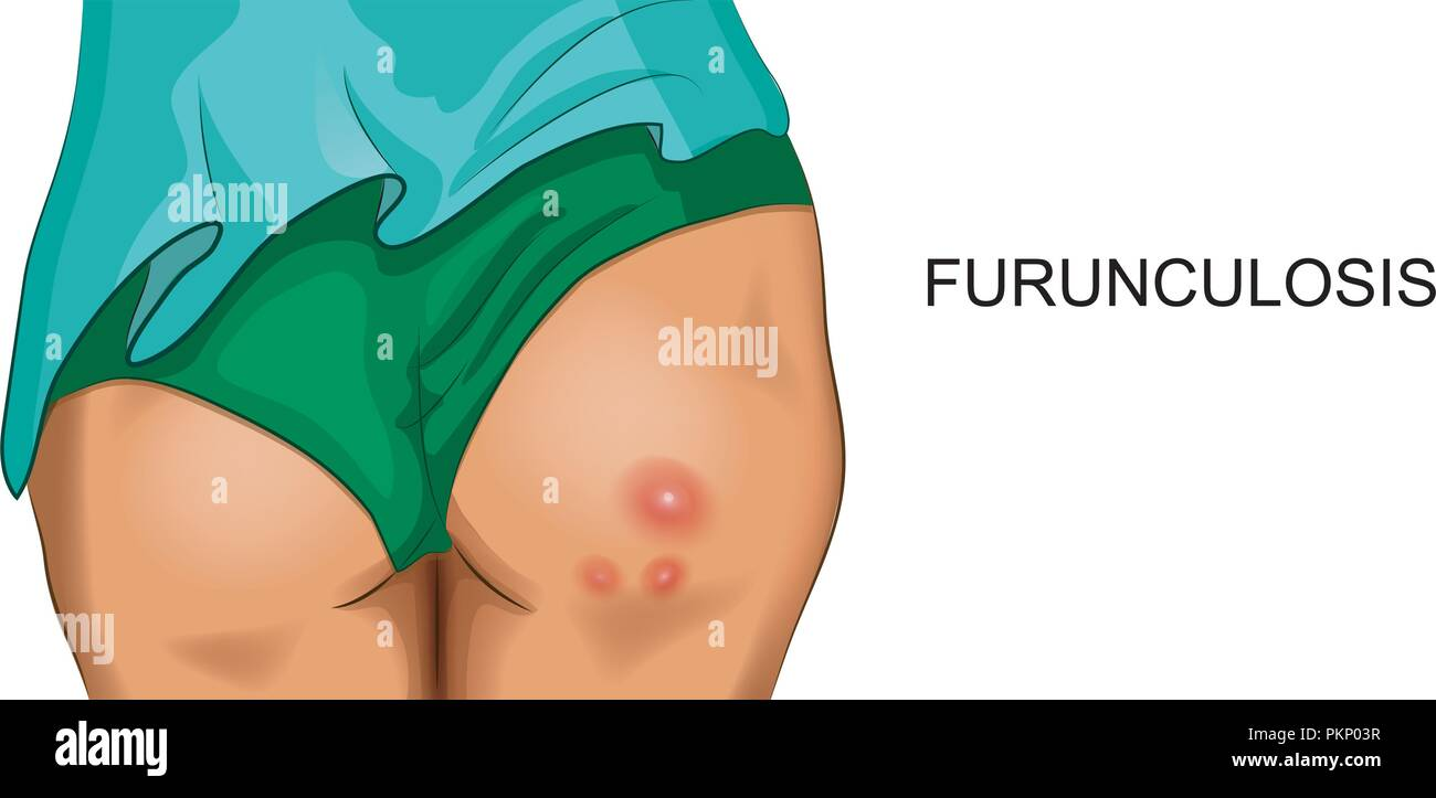 vector illustration of furunculosis on female buttocks - Stock Image