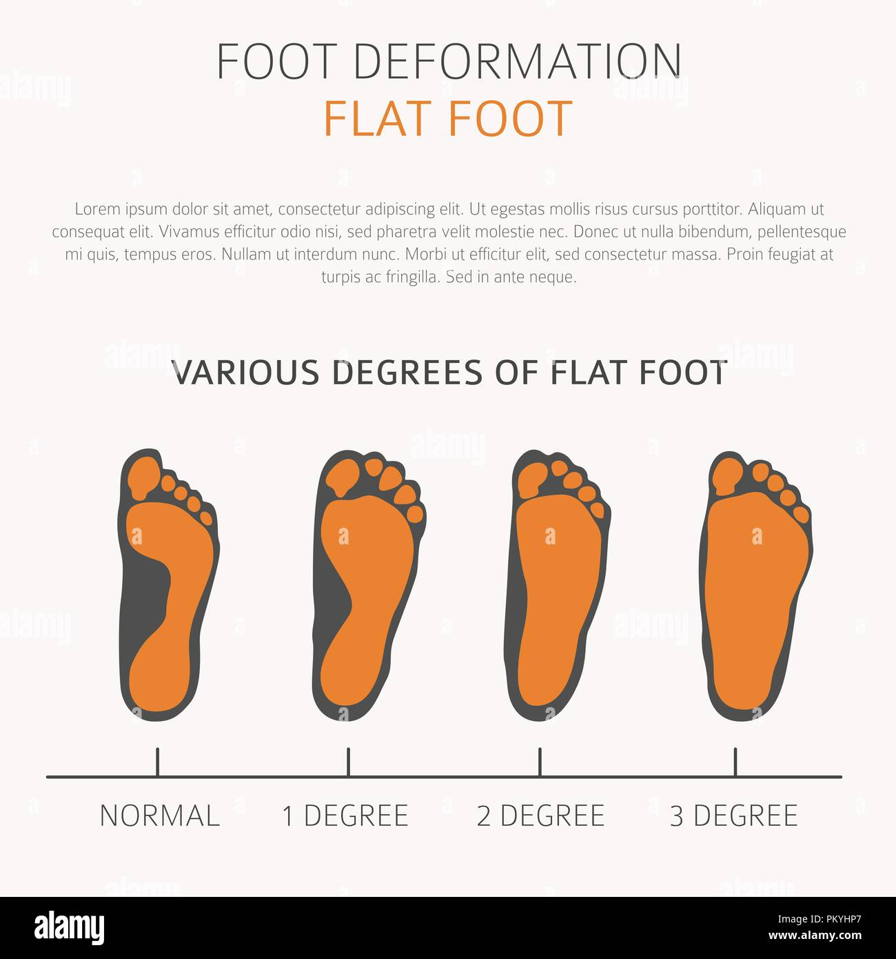 Flat Foot Foot Infographic Icon Medicine Toe Foot Deformation