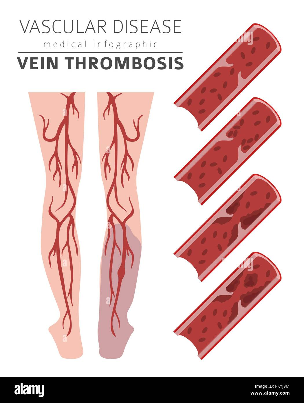 Vascular diseases. Vein thrombosis symptoms, treatment icon set. Medical infographic design. Vector illustration - Stock Image