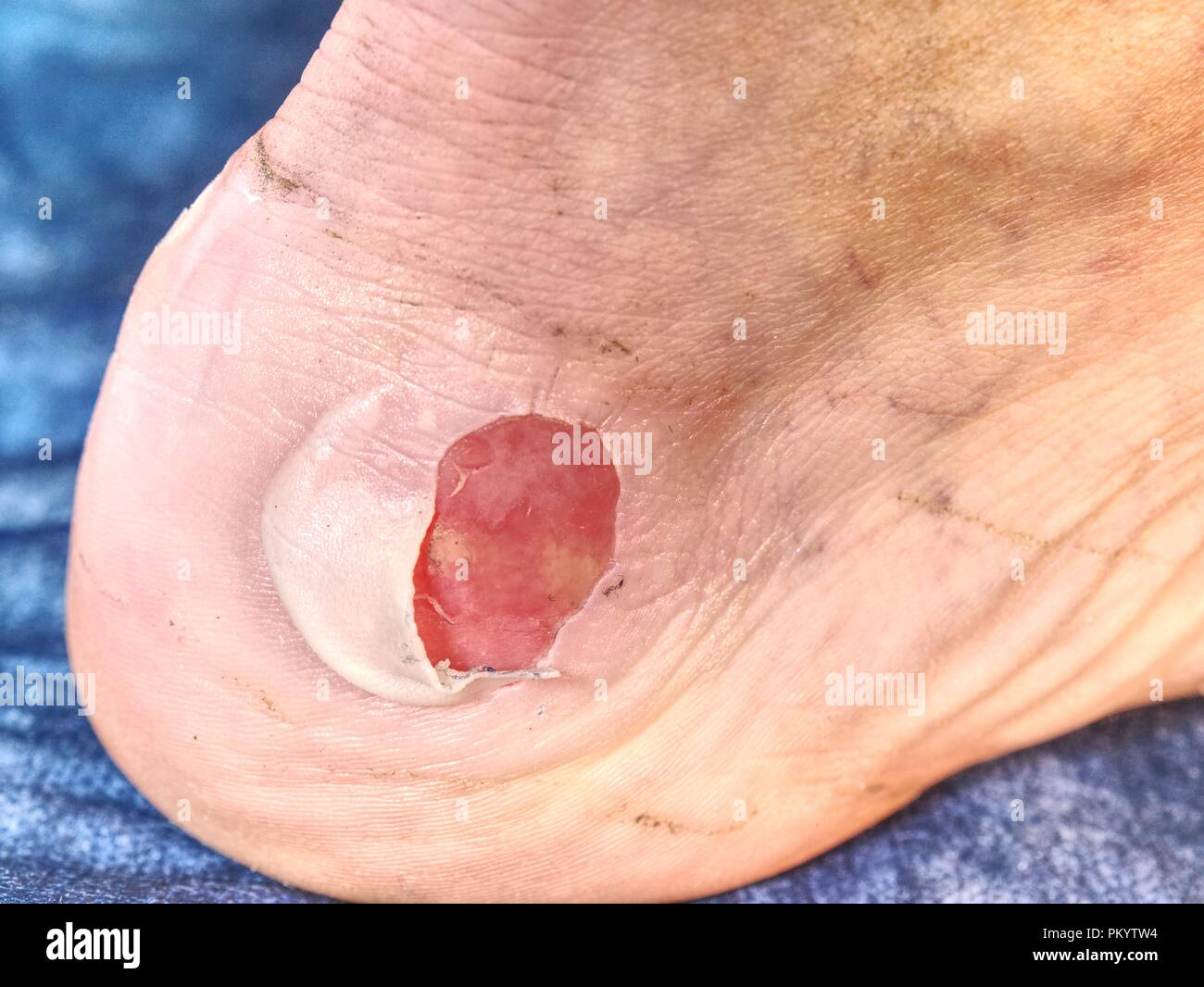 Detail of a fresh bloody blister on leg after sport accident.  Hot  and untouchable place on male skin. Stock Photo