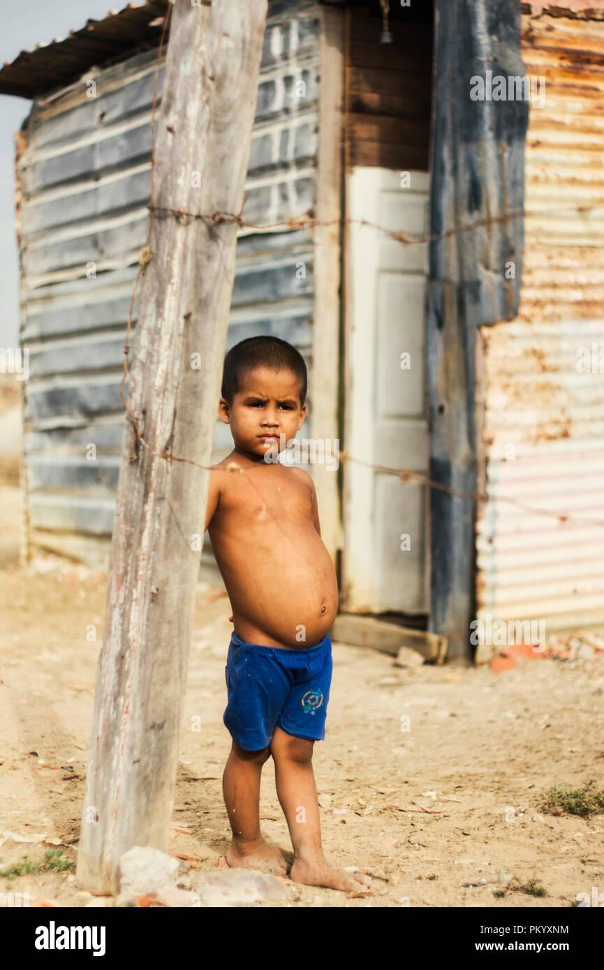 BARCELONA, VENEZUELA June 2, 2018: child in the poor community 'ciudad de los mochos' with problems of malnutrition Kwashiorkor - Stock Image