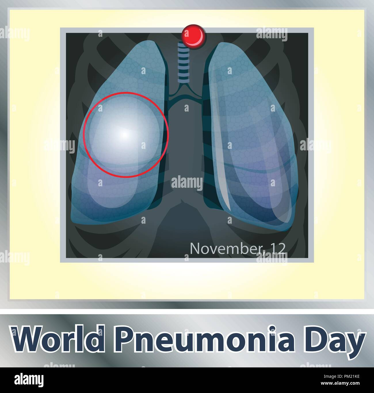 Symbol lung disease. Breathing. Respiratory system. Respiratory disease - cancer asthma, tuberculosis, pneumonia . World Pneumonia Day. Health care. X-ray of the lungs - Stock Image
