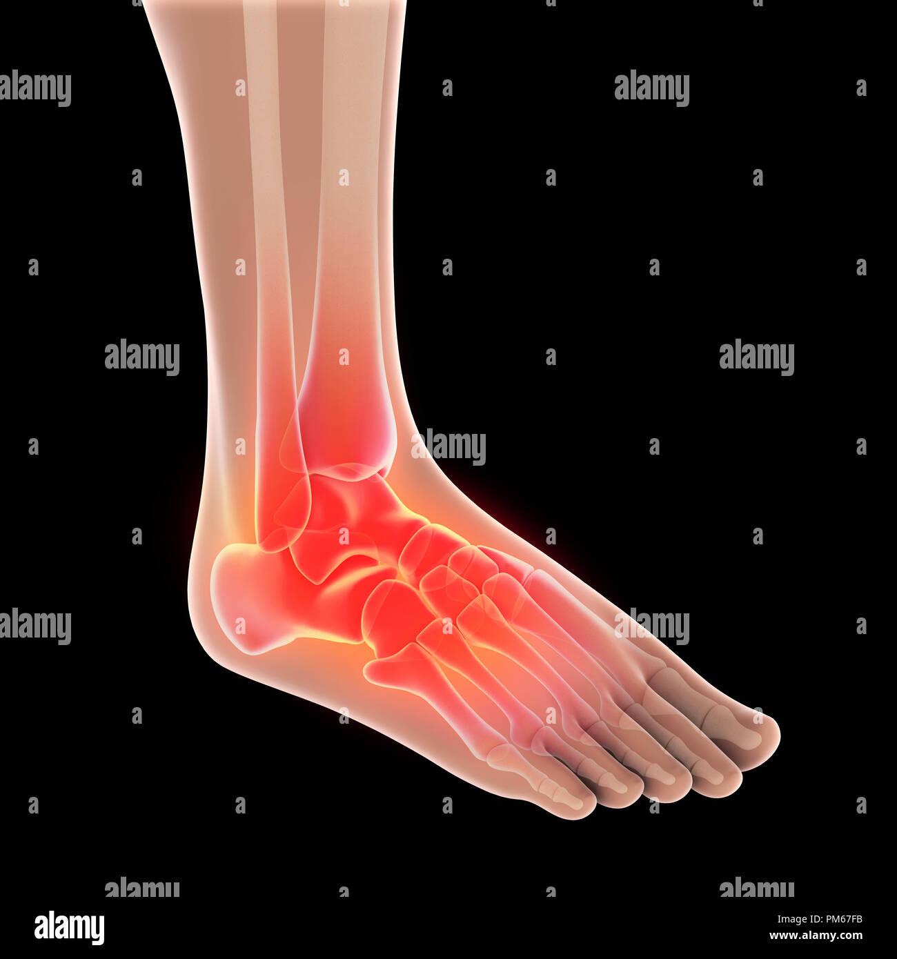 Human Heel Anatomy Stock Photos Human Heel Anatomy Stock Images