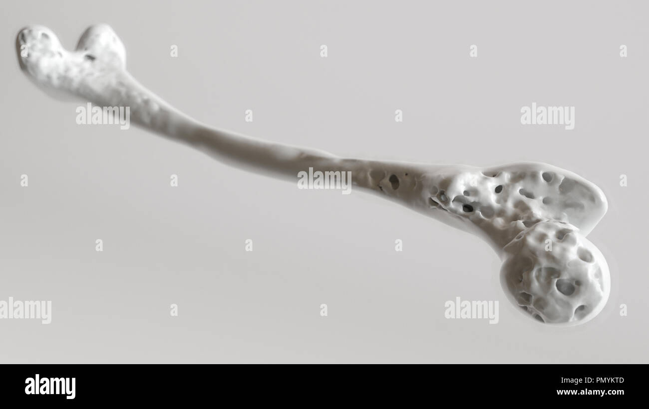 Osteoporosis stage 3 of 4 - upper limb bones - 3d rendering - Stock Image