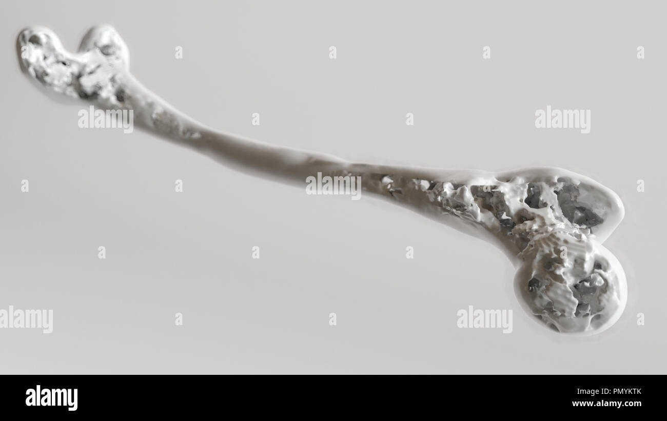 Osteoporosis stage 4 of 4 - upper limb bones - 3d rendering - Stock Image