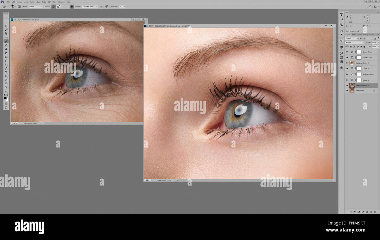 Womans eye original photo and one retouched with wrinkles and imperfections removed in Photoshop image editing software on computer screen. Before and - Stock Image