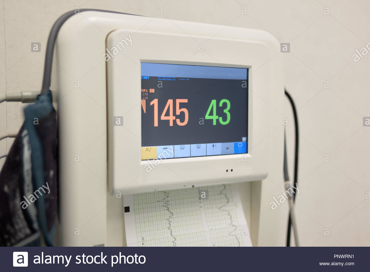 Fetal monitor printing the baby's heart beats and mother uterine contraction during delivery or birth in delivery. Medical concept. - Stock Image