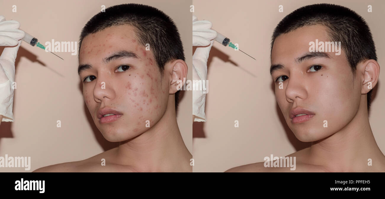 Young man with before and after treatment from acne and pimple, Before and after of face skin treat by scars and wrinkle by acne removal. Spots skin b Stock Photo