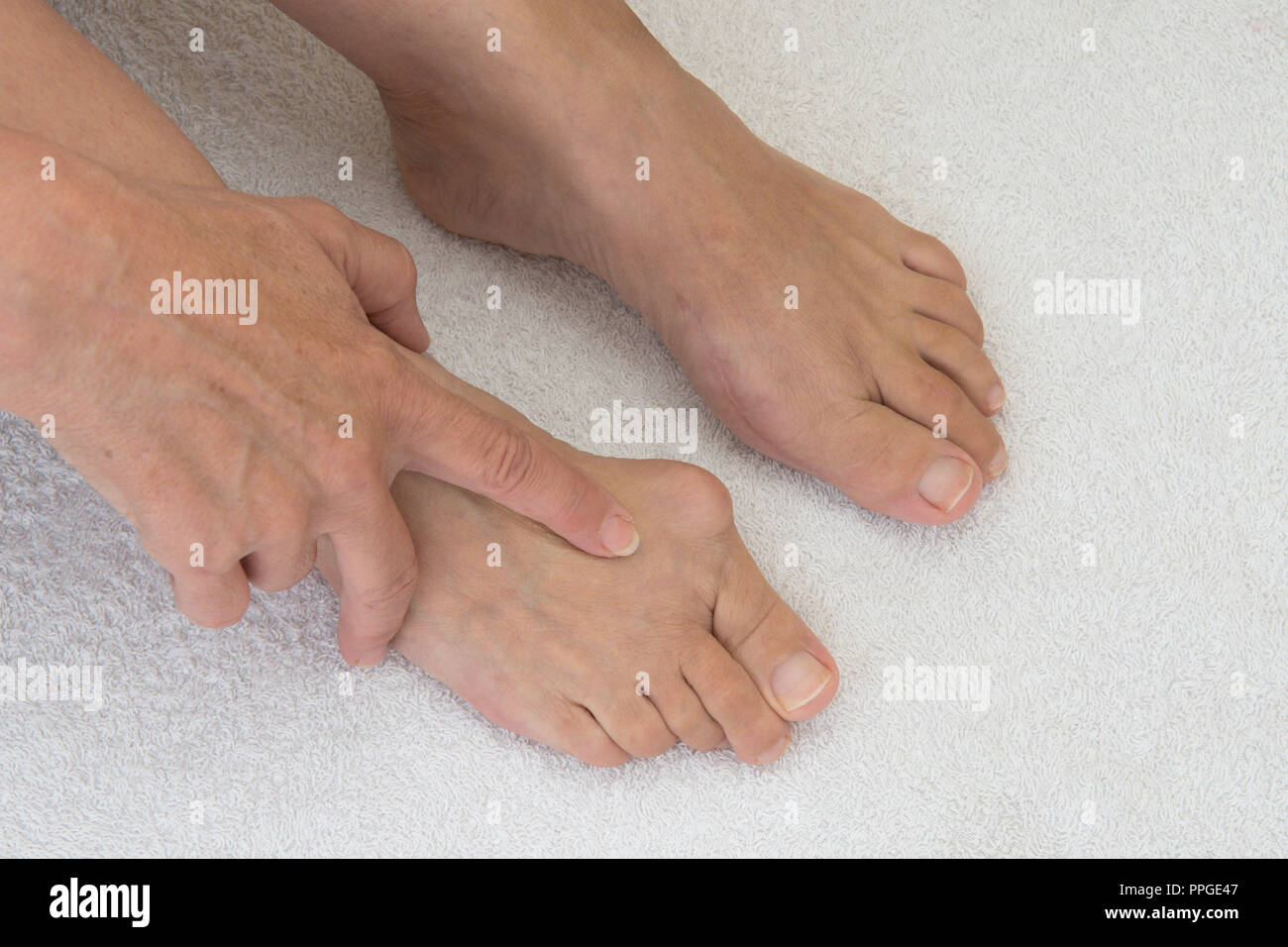 bunion on joint of big toe, before and after operation, comparison of one foot with bunion removed and other yet to be done, hand rubbing swelling. - Stock Image