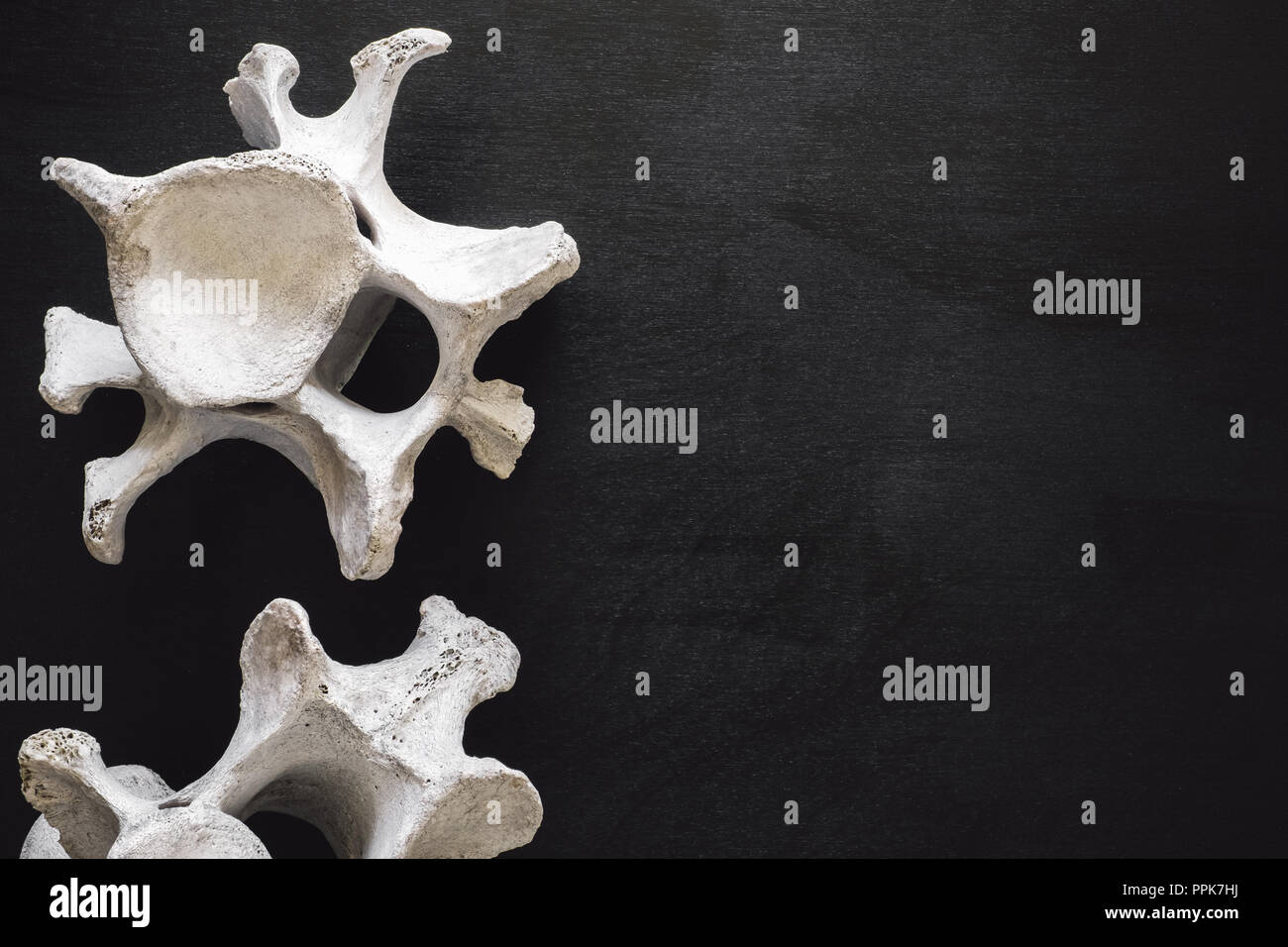 Animal Vertebrae on Black Table with Space for Copy - Stock Image