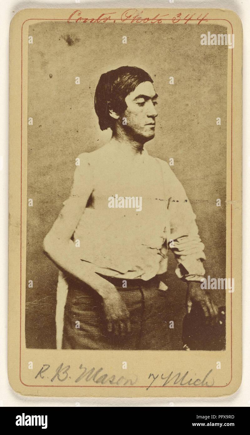 R.B. Mason Pvt. 7 Mich. Excis. head of humerous. Civil War victim; Baldwin & Prior, American, 1865 - 1867, about 1865; Albumen - Stock Image