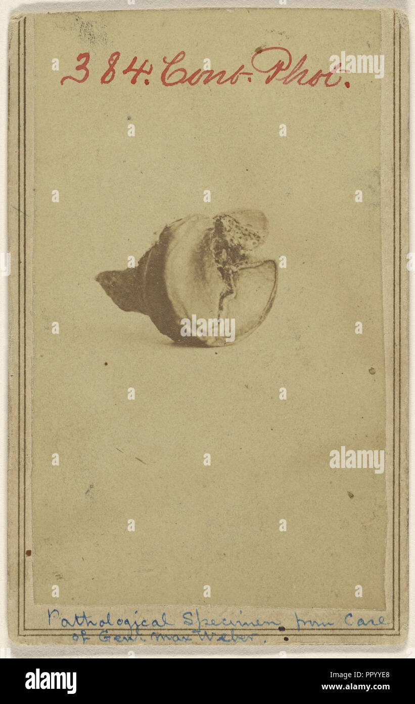 Pathological Specimen from case of Genl. Max Weber. Civil War victim; American; 1862 - 1864; Albumen silver print Stock Photo
